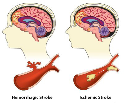 Illustration of Hemorrhagic and Ischemic Stroke